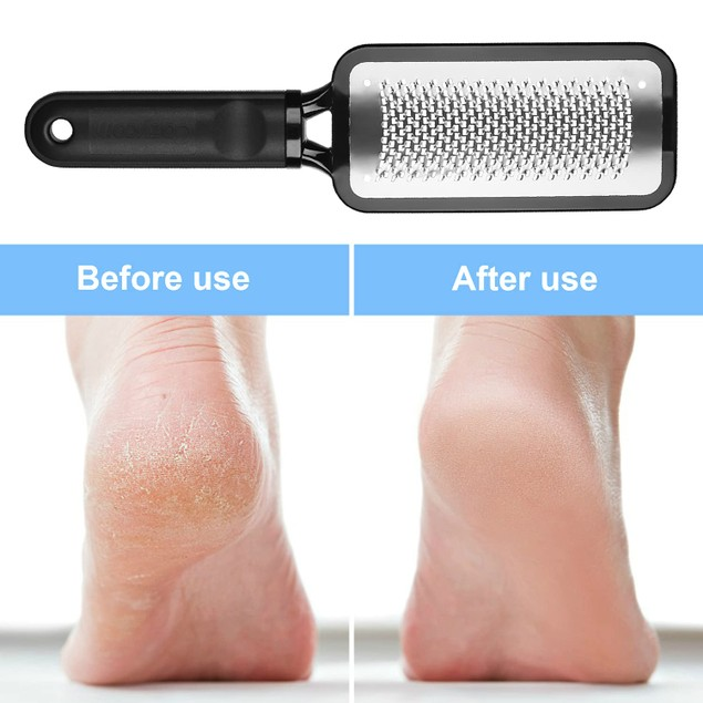Foot File Foot Rasp Pedicure Tool Callus Hard Cracked Skin Corns Remover