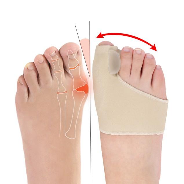 Hallux Valgus Corrector Day and Night Orthopedic Nursing Set Bigfoot Toe Separator