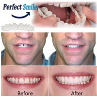 Snapon Smile Simulated Veneers