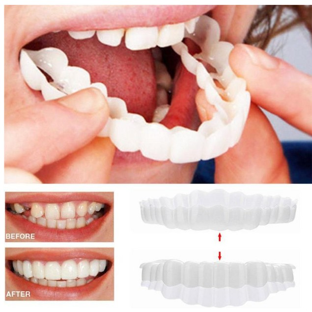 Snapon Smile Simulated Veneers